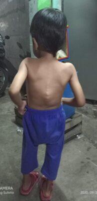Wali Kota Jakut Peduli Derita Bocah Miskin Berpenyakit Benjol Tulang Punggung 114