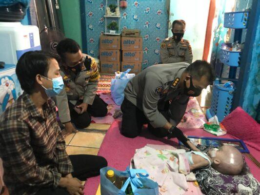 Polda Banten Peduli, Kunjungi dan Bantu Balita Penderita Hydrocephalus di Serang 113